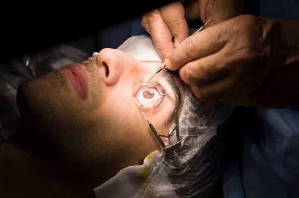 Phẫu thuật mắt là biện pháp chữa loạn thị triệt để hiện nay