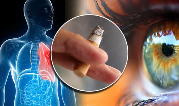 dấu hiệu của mắt khi hút thuốc quá nhiều và các bệnh liên quan về gan