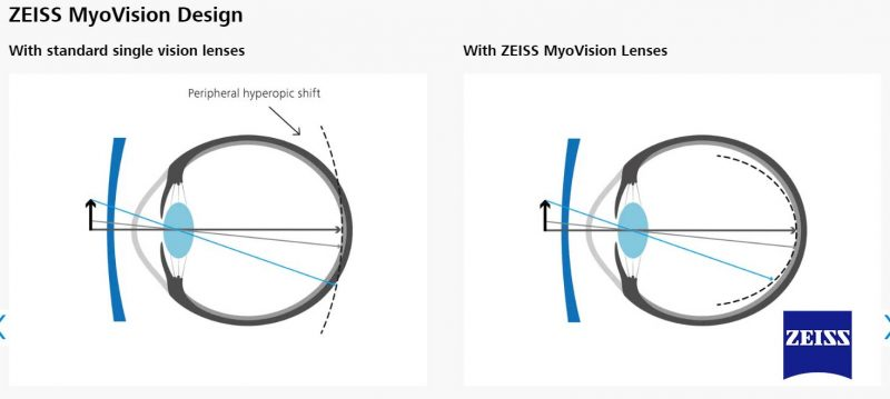 Thiết kế tròng kính MyoVision