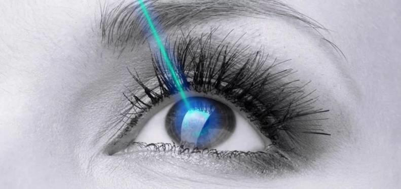 Những điều cần biết trước và sau khi mổ mắt cận