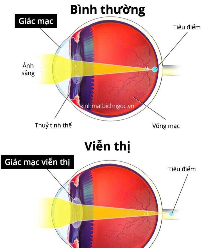 Hình ảnh phân biệt mắt bình thường và mắt viễn thị